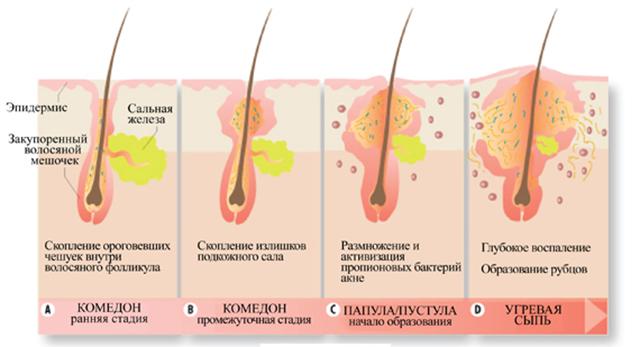 нарушение обмена веществ у грудничка симптомы